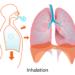 マラソンの呼吸法、差し込み対策